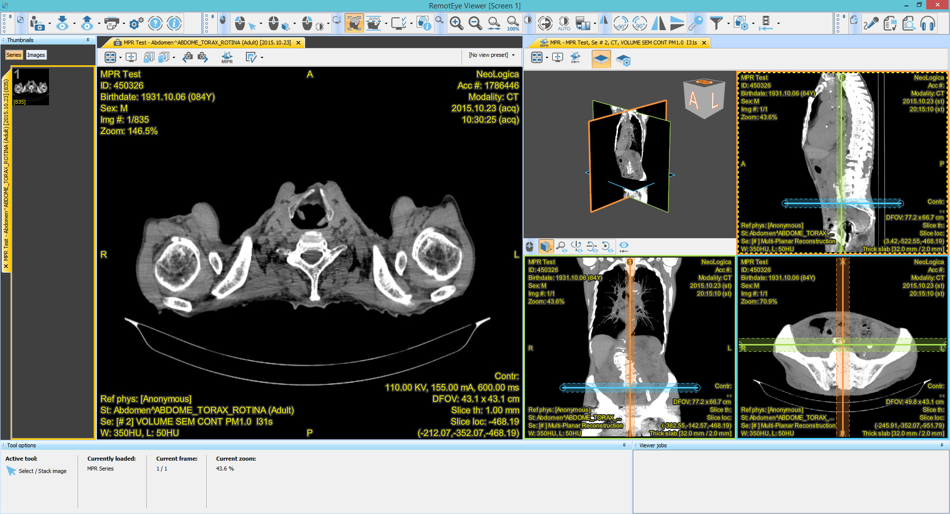 Web DICOM Viewer - RemotEye Suite